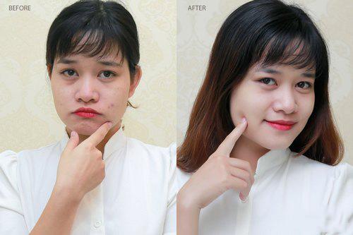 danh gia khach hang lion pair acne